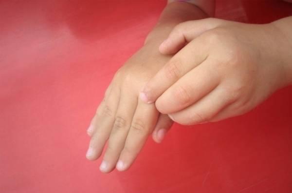 чешется палец примета